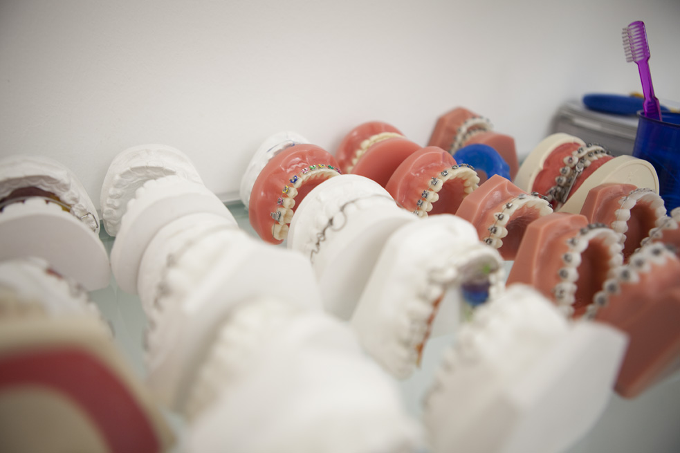 Zahnspangen werden mithilfe von individuellen Zahnabdrücken angepasst